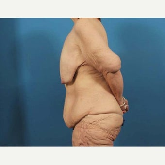 53 year old woman treated with Body Lift before 1770619