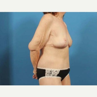 53 year old woman treated with Body Lift 1770619