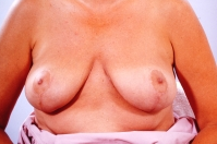 Breast Reduction after 3446233