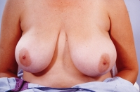 Breast Reduction before 3446233