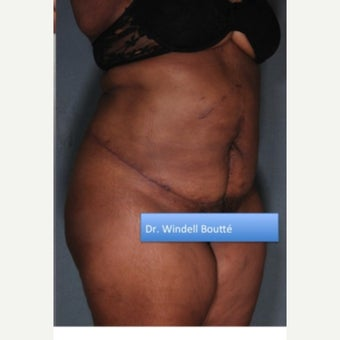 45-54 year old woman treated with Liposuction after 1651814