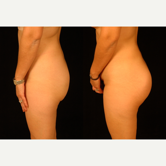 25-34 year old woman treated with Butt Implants before 3659476