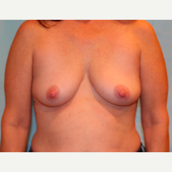 48 year old woman treated with 330 cc Ideal Breast Implants before 3468011