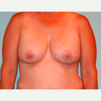 48 year old woman treated with 330 cc Ideal Breast Implants after 3468011