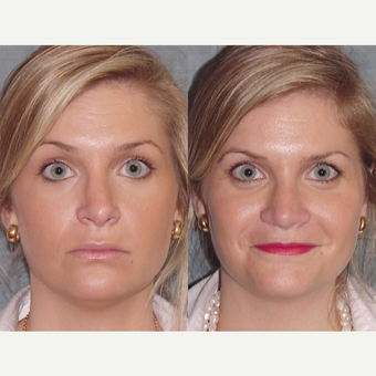 25-34 year old woman treated with Revision Rhinoplasty before 3179813