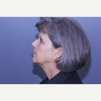 55-64 year old woman treated with Lifestyle Lift before 2029422