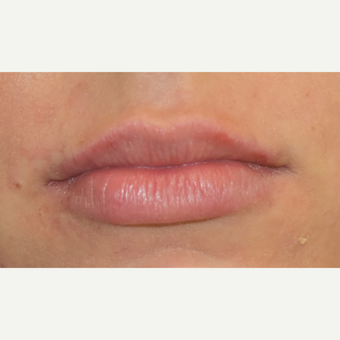 18-24 year old woman treated with Juvederm after 3749628