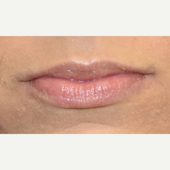 18-24 year old woman treated with Juvederm before 3749628