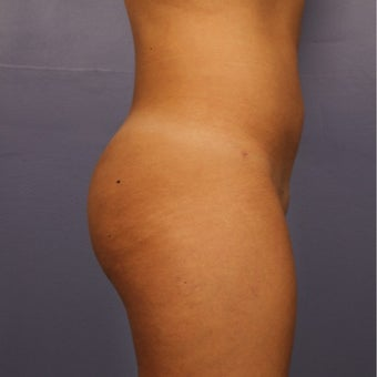 18-24 year old woman treated with Brazilian Butt Lift after 2593632