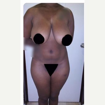 35-44 year old woman treated with Breast Reduction before 3706776