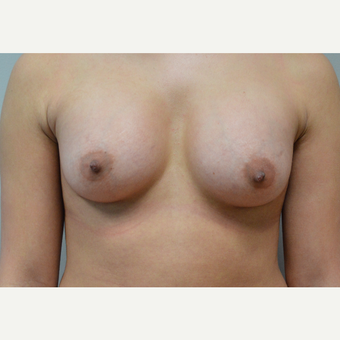 35-44 year old woman treated with Breast Augmentation after 3168210