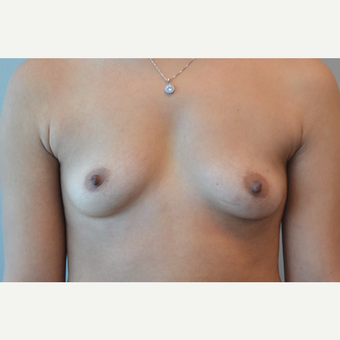 35-44 year old woman treated with Breast Augmentation before 3168210
