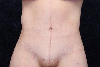 35 Year Old Female, Beltlift After Gastric Bypass