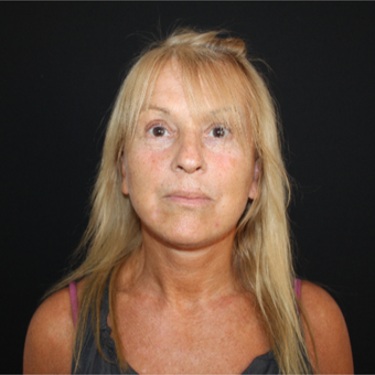 55-64 year old woman treated with Facelift after 3493222