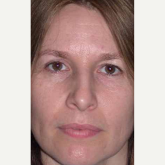 35-44 year old woman treated with Rhinoplasty before 3521248