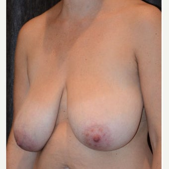 35-44 y.o. woman with wide, droopy breasts treated with vertical breast lift, extensive liposuction before 2301360