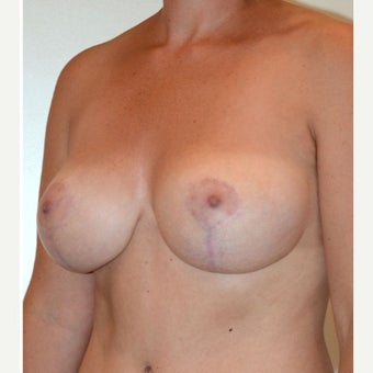 35-44 y.o. woman with wide, droopy breasts treated with vertical breast lift, extensive liposuction after 2301360