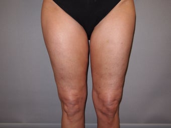49 Year Old Female treated for Cellulite Reduction - Cellulaze after 1052959
