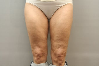 49 Year Old Female treated for Cellulite Reduction - Cellulaze before 1052959