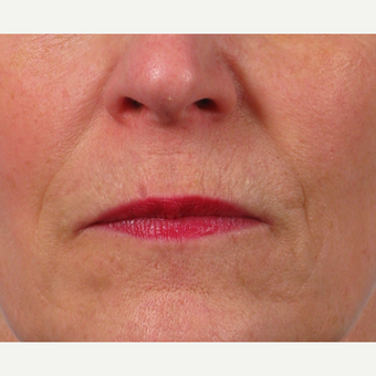 55-64 year old woman treated with Lip Lift before 2765812