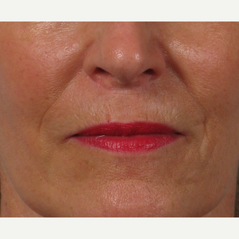 55-64 year old woman treated with Lip Lift after 2765812