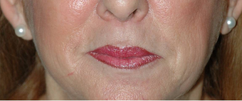 Lip Augmentation with Lip Lift for Natural, Refreshed Look after 896346