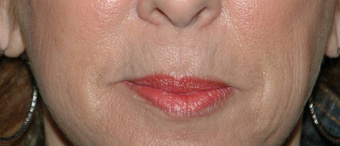Lip Augmentation with Lip Lift for Natural, Refreshed Look before 896346