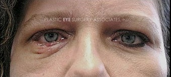 45-54 year old woman treated with Eyelid Retraction Repair before 3319545