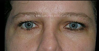 45-54 year old woman treated with Eyelid Retraction Repair after 3319545