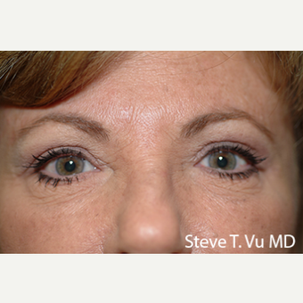 35-44 year old woman treated with Eyelid Surgery after 3578268
