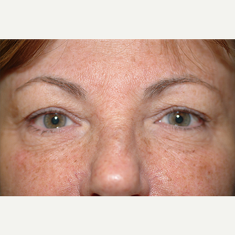 35-44 year old woman treated with Eyelid Surgery before 3578268
