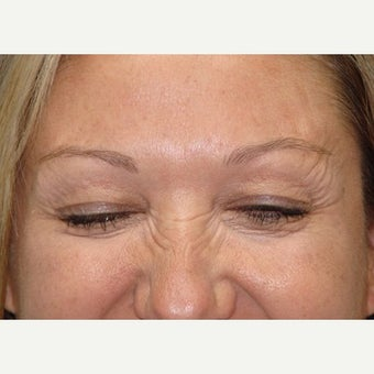 45-54 year old woman treated with Botox after 2502788