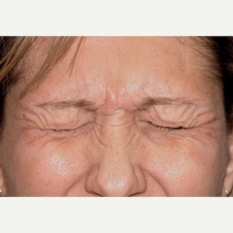 45-54 year old woman treated with Botox before 2502788