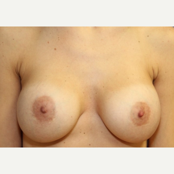 33 year old woman with a bilateral exchange of saline implants for Ideal Implants after 3064721