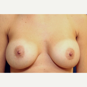 33 year old woman with a bilateral exchange of saline implants for Ideal Implants before 3064721