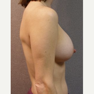 25-34 year old woman treated with Breast Implants after 3108530