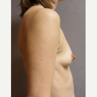 25-34 year old woman treated with Breast Implants before 3108530