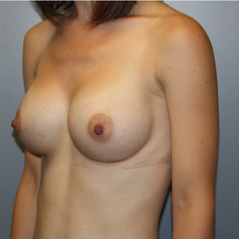 25-34 year old woman treated with Breast Augmentation after 3808776