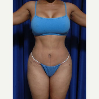 35-44 year old woman treated with Tummy Tuck after 1918134