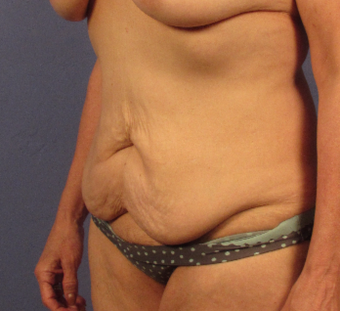 35-44 year old woman treated with Tummy Tuck before 3768941
