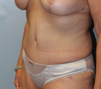35-44 year old woman treated with Tummy Tuck after 3768941
