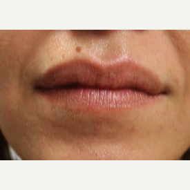 40 year old woman treated with Restylane in lips before 3121291