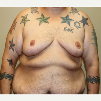 35-44 year old man treated with FTM Chest Masculinization Surgery before 3442612
