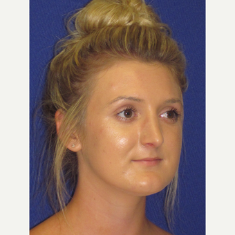 Rhinoplasty after 3831486