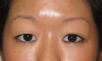 Asian Blepharoplasty before 326041