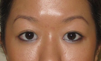 Asian Blepharoplasty after 326041