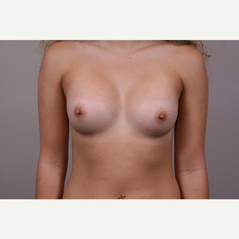 18-24 year old woman treated with Breast Augmentation after 3769339