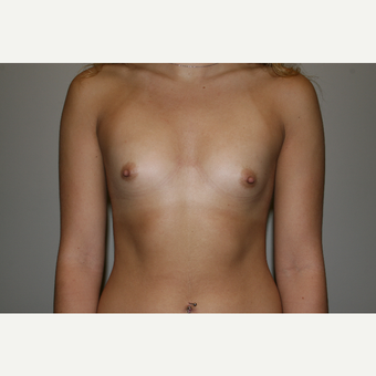 18-24 year old woman treated with Breast Augmentation before 3769339