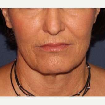 55-64 year old woman treated with Radiesse