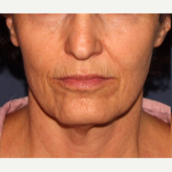 55-64 year old woman treated with Radiesse before 3137106